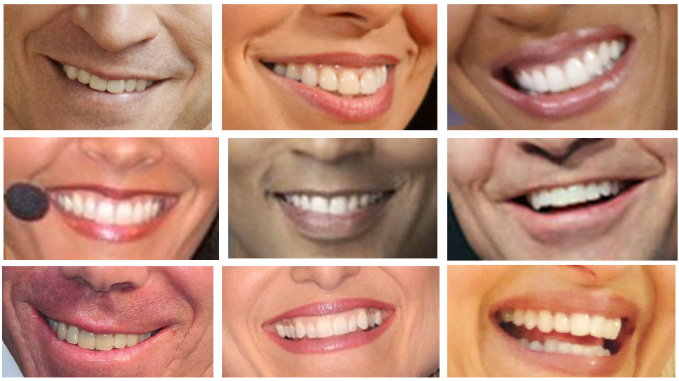 The teeth of TV anchors Anderson Cooper, Soledad O'Brien, Robin Roberts, Suzanne Malveaux, Don Lemon, George Stephanopolous, David Gregory, Ashley Banfield, and Diane Sawyer.