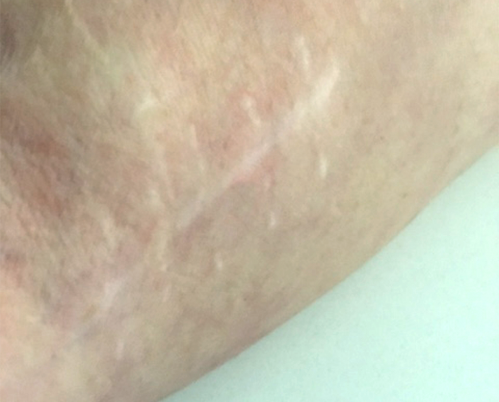 a scar across a persons arm