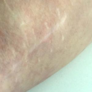 My Scars, My Story